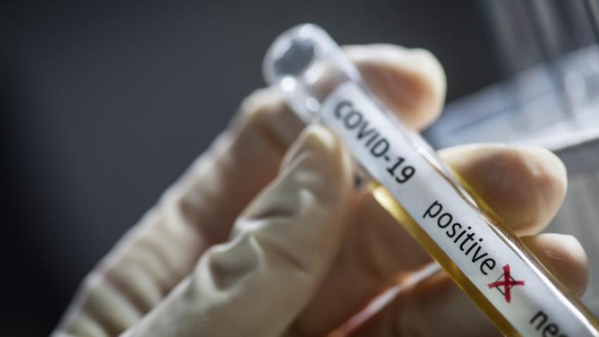 Doi angajați din Centrala MAE au fost confirmați cu noul coronavirus